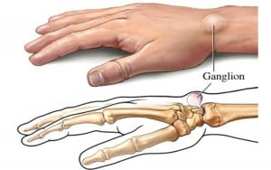 Ganglion-Cyst-Treatment-in-NYC