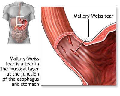 Mallory-Weiss tear at the junction of the esophagus and stomach