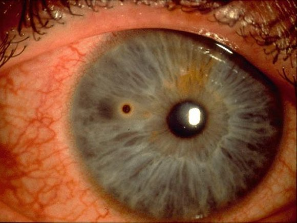 "Corneal metallic foreign body with a ""rust ring"""