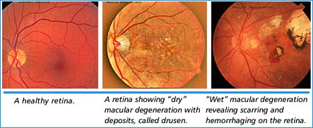 Macular Degeneration Smarty Pance