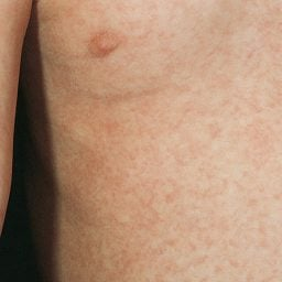 Roseola appears as pale pink macules which may appear first first on the neck