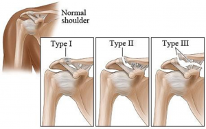 ac-joint-seperation-types